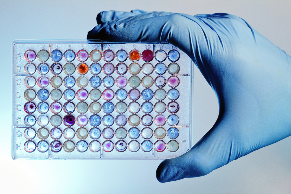 Application case microplates inspection